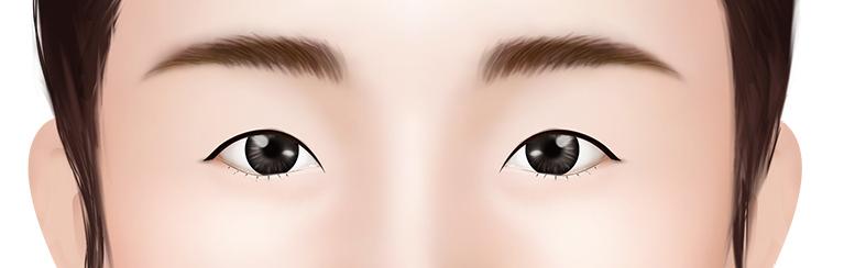 Small eyes and thin skin