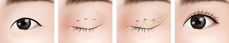 작은 눈 얇은 피부 수술방법