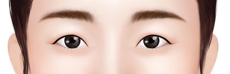 작은 눈 두툼한 피부