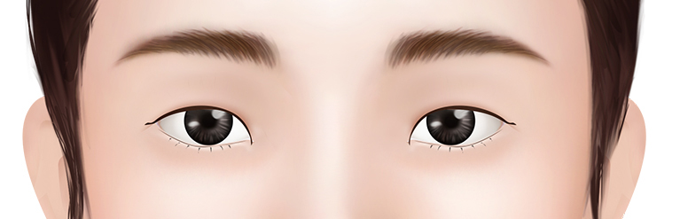 Large Distance Between the Eyes