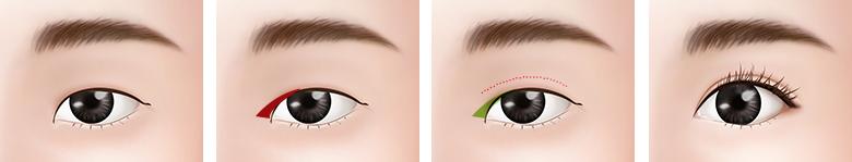 눈 사이 멀어보이는 눈 수술방법