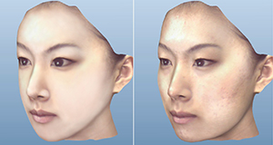 3-Dimensional Simulation (Virtual Surgery)
